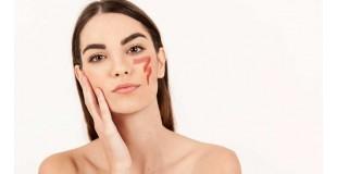 Как избавиться от купероза на лице?